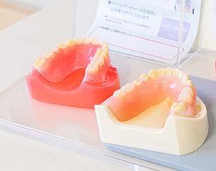 こだわりの入れ歯を制作
