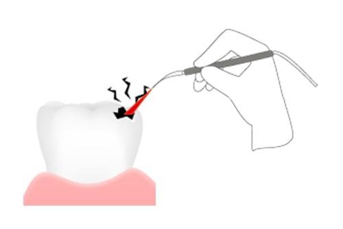 虫歯 治療 後 し みる